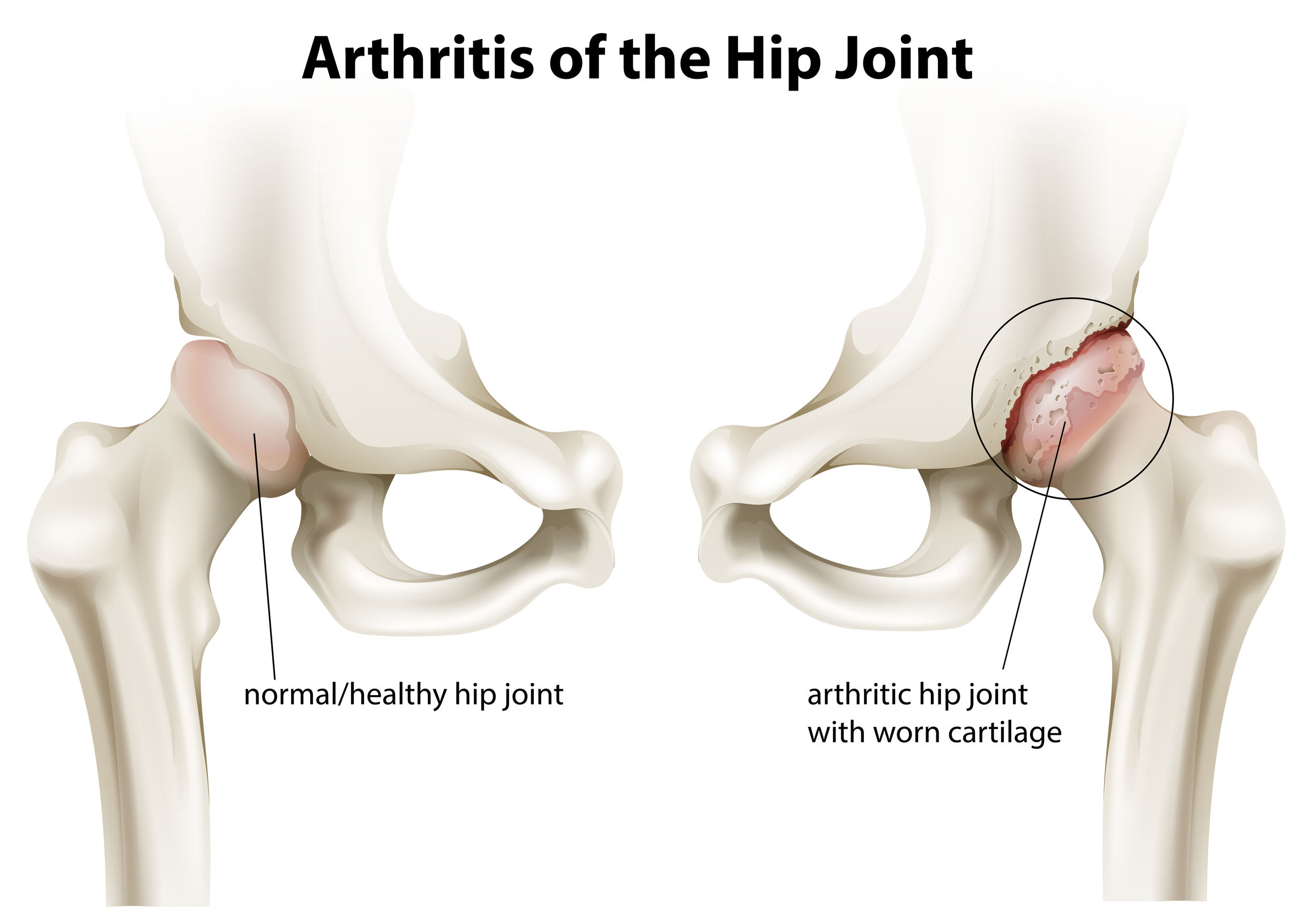 Minimally Invasive Anterior Hip Arthroplasty Hueter Dr